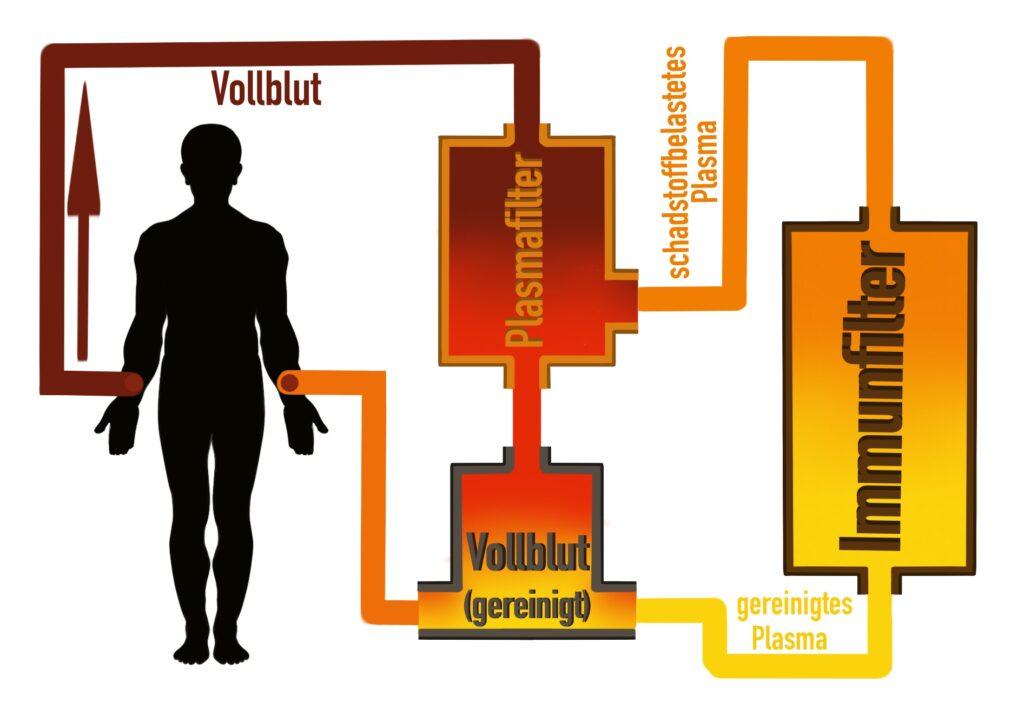 Grundprinzip des Verfahrens der therapeutischen Apherese