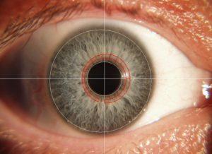 Iris Darmareal rot